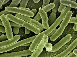 Legionella-parma